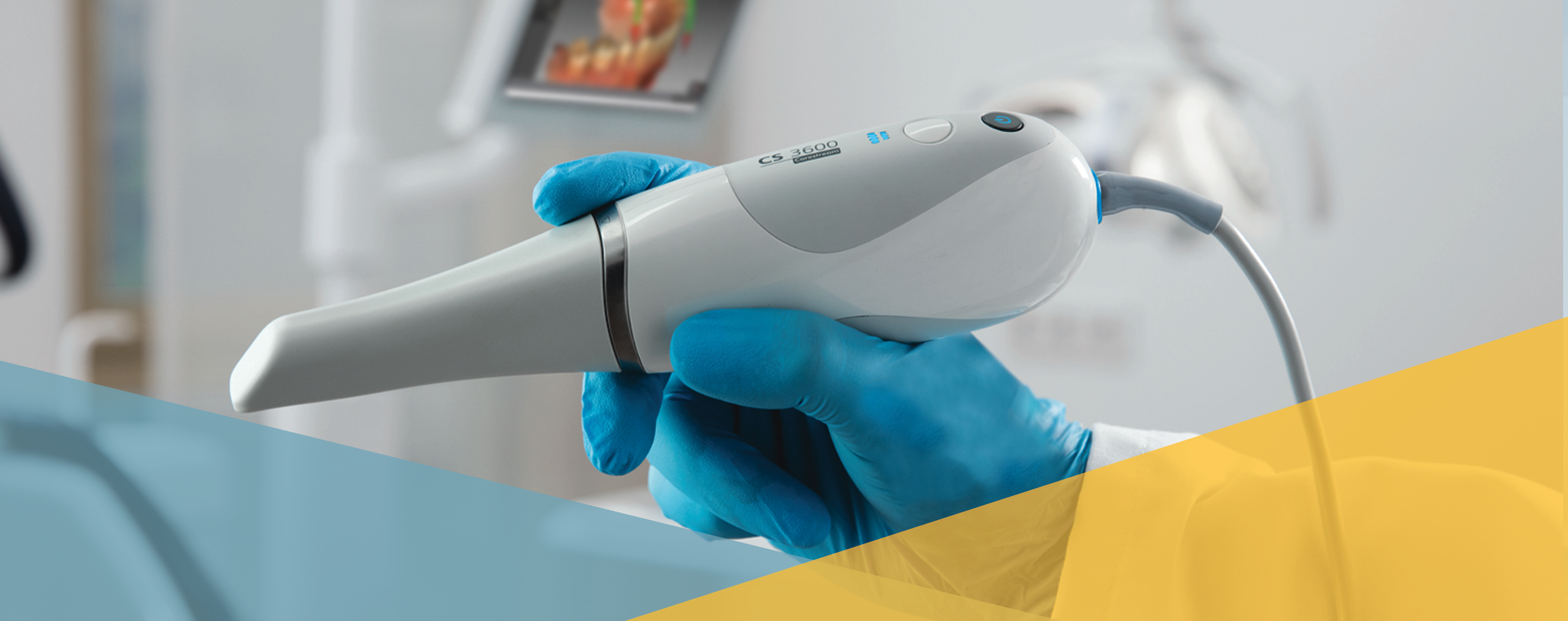 Top 6 Intraoral Scanner Attributes That Matter Most to You