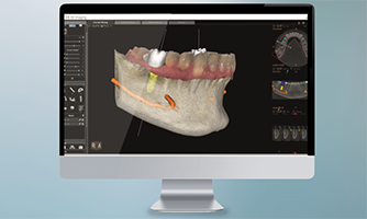 <p>CS 3D Imaging Software</p> thumbnail
