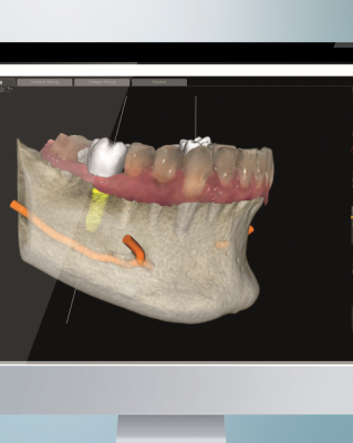CS 3D Imaging Software thumbnail