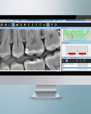 Drivers and Updates   Carestream Dental