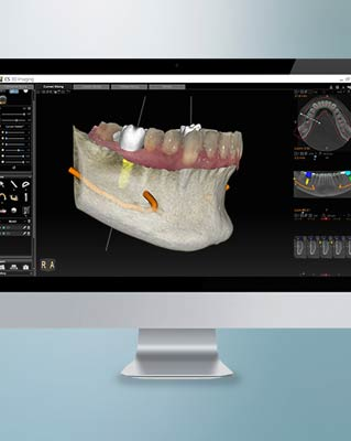 <p>Orthodontic Imaging</p> thumbnail