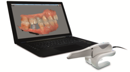 CS 3600 for Implant-Borne Restorations thumbnail