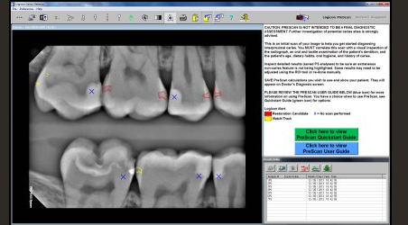 Logicon Caries Detector Software thumbnail